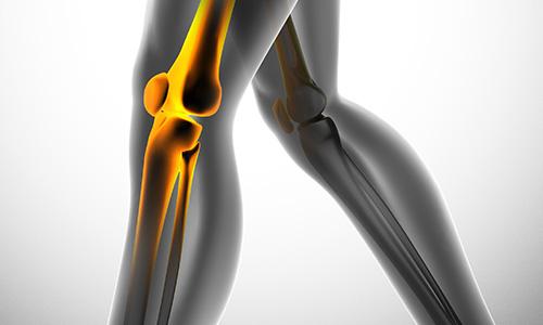 knee replacement doctor in Brooksville