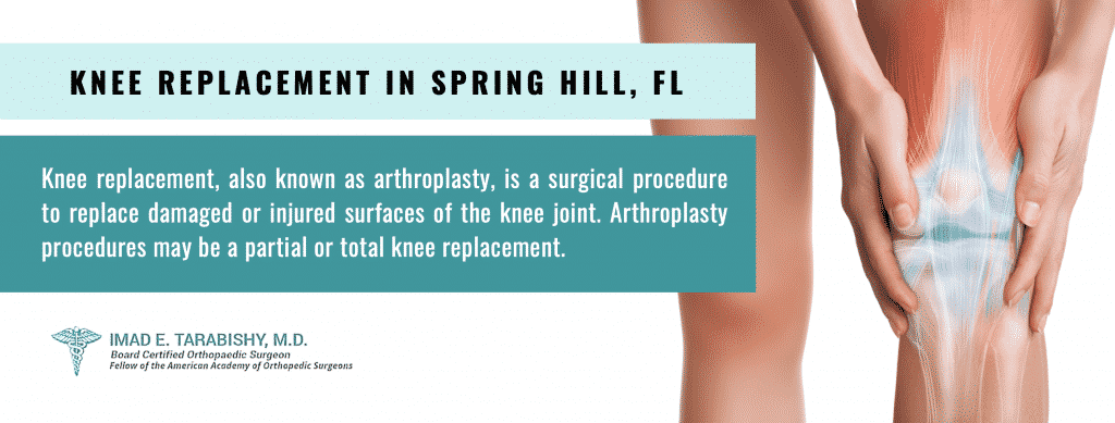 knee replacement spring hill